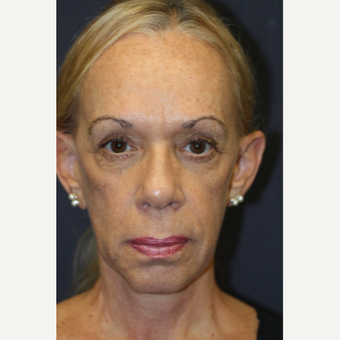 64 year old woman treated with Juvederm before 3689952