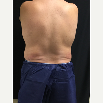 45-54 year old man treated with CoolSculpting after 3594855