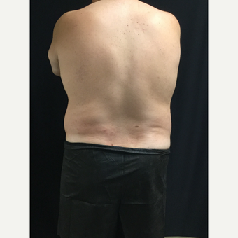 45-54 year old man treated with CoolSculpting before 3594855