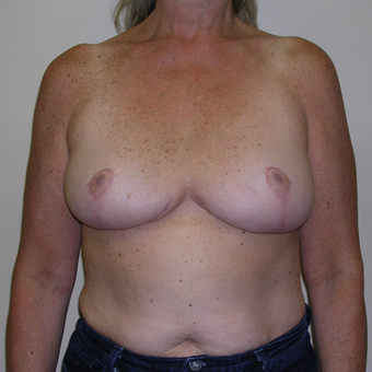 45-54 year old woman treated with Breast Reduction after 3000503