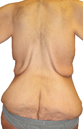 44 year old man treated with Body Lift 3409097