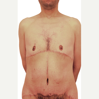 44 year old man treated with Body Lift after 3409097