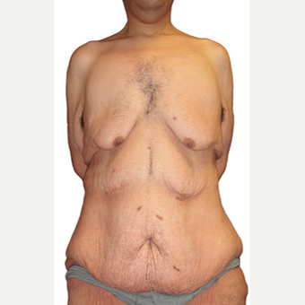 44 year old man treated with Body Lift before 3409097