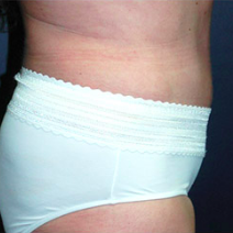 52 year old woman treated with Tummy Tuck after 3578310