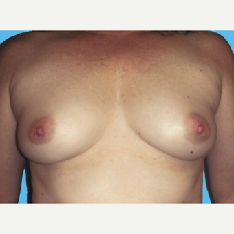 Breast Augmentation before 3732748