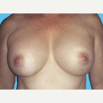 Breast Augmentation after 3732748