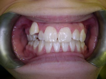 Treatment of blocked out  upper eye tooth with braces (orthodontics) before 1168532