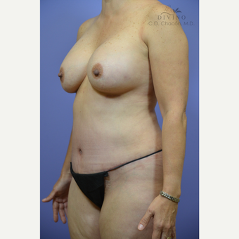 45-54 year old woman treated with Mommy Makeover after 3421609