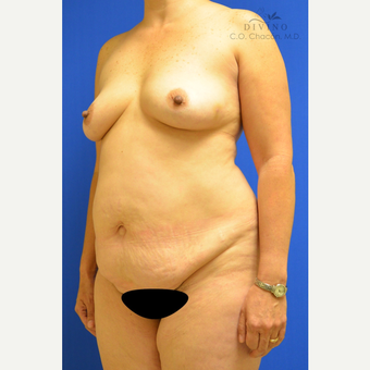 45-54 year old woman treated with Mommy Makeover before 3421609