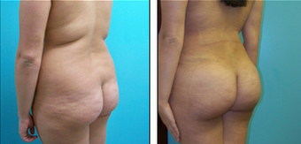 Brazilian Butt Lift Before & After after 1110808