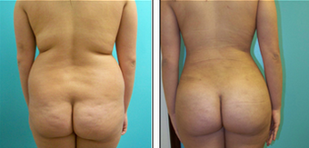 Brazilian Butt Lift Before & After 1110808