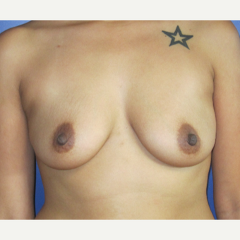 25-34 year old woman treated with Breast Augmentation before 3695846
