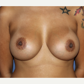 25-34 year old woman treated with Breast Augmentation after 3695846