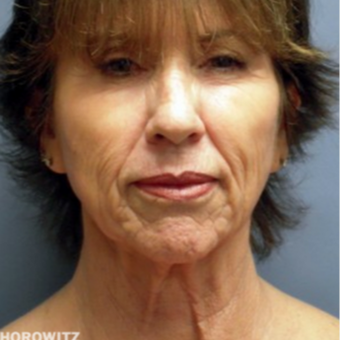 55-64 year old woman treated with Neck Lift before 2014438
