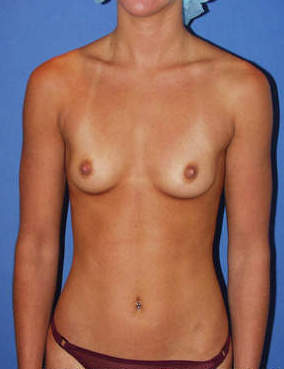 Breast Augmentation before 1411074