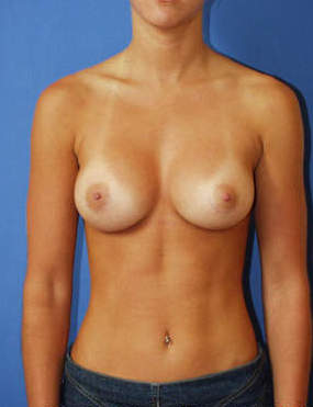 Breast Augmentation after 1411074