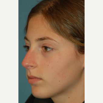 17 or under year old woman treated with Rhinoplasty before 3505821