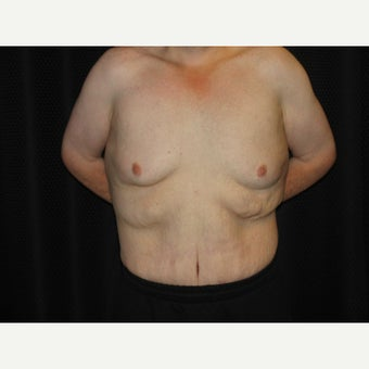 25-34 year old man treated with Body Lift after 1536472