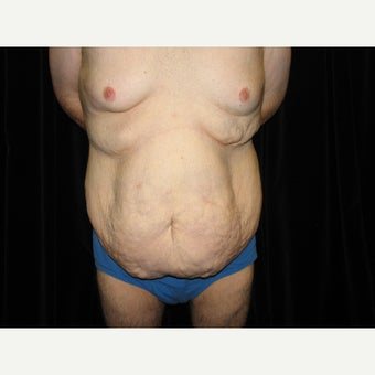 25-34 year old man treated with Body Lift before 1536472