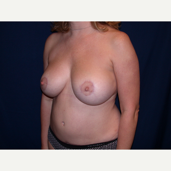 35-44 year old woman treated with Breast Lift with Implants after 3589822