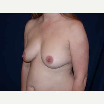 35-44 year old woman treated with Breast Lift with Implants before 3589822
