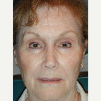 55-64 year old woman treated with Non Surgical Nose Job