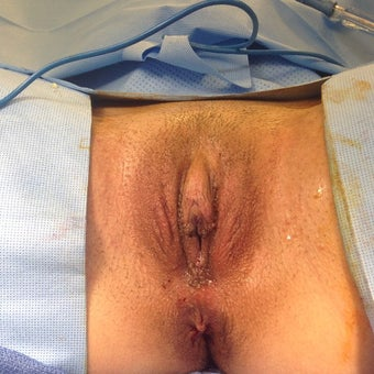 18-24 year old woman treated with Labiaplasty after 1645145