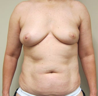 50-year-old female with bilateral immediate DIEP flap breast reconstruction before 698989