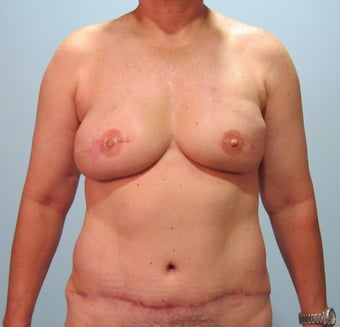 50-year-old female with bilateral immediate DIEP flap breast reconstruction after 698989
