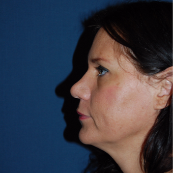 44 year old woman treated with Rhinoplasty after 3036715