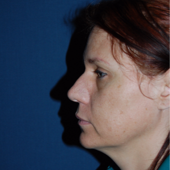 44 year old woman treated with Rhinoplasty before 3036715
