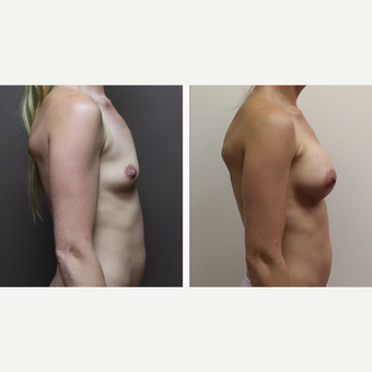 25-34 year old woman treated with Breast Augmentation after 3300140
