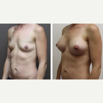 25-34 year old woman treated with Breast Augmentation before 3300140