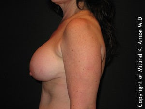 Female with breast implant removal 1129461
