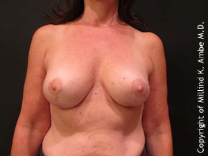 Female with breast implant removal after 1129461