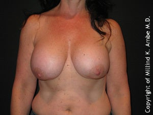 Female with breast implant removal before 1129461
