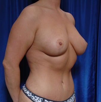 Mastopexy with fat grafting for breast augmentation and tummy tuck after 121730
