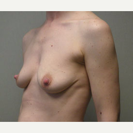 Breast Augmentation before 3680744