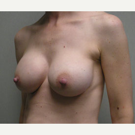 Breast Augmentation after 3680744