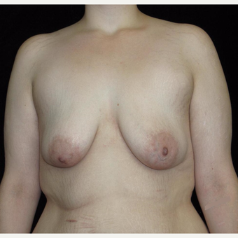 26 year old woman treated with Breast Lift with Implants after Weight Loss before 3251786