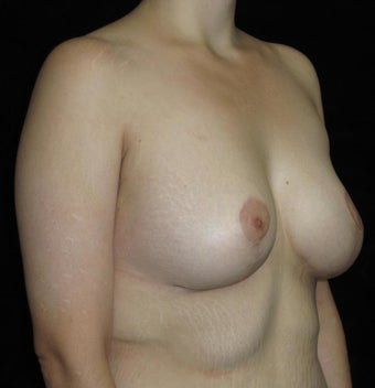 26 year old woman treated with Breast Lift with Implants after Weight Loss 3251786