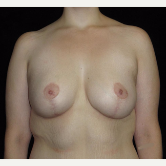 26 year old woman treated with Breast Lift with Implants after Weight Loss after 3251786