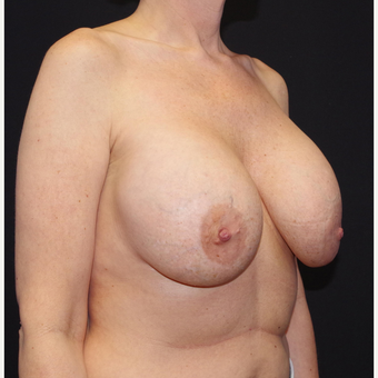 35-44 year old woman treated with Breast Implant Removal before 3741656