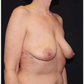 35-44 year old woman treated with Breast Implant Removal after 3741656