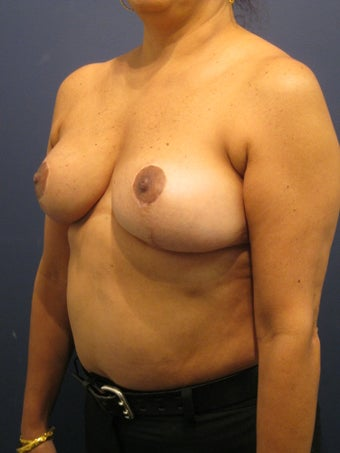 Breast lift to treat breast asymmetry  902973