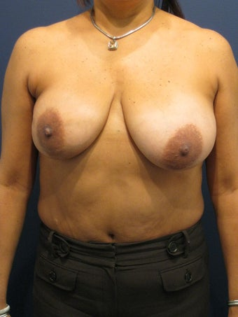 Breast lift to treat breast asymmetry  before 902973