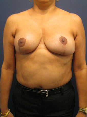 Breast lift to treat breast asymmetry  after 902973