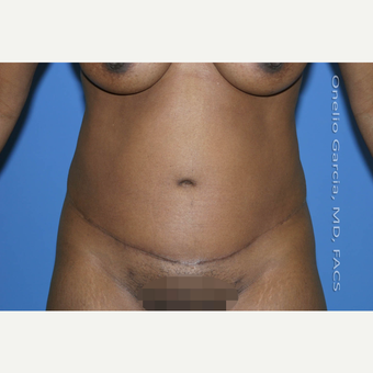 35-44 year old woman treated with Tummy Tuck after 2999077