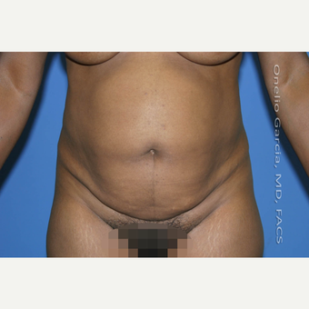 35-44 year old woman treated with Tummy Tuck before 2999077