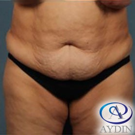 55-64 year old woman treated with Tummy Tuck before 3259823